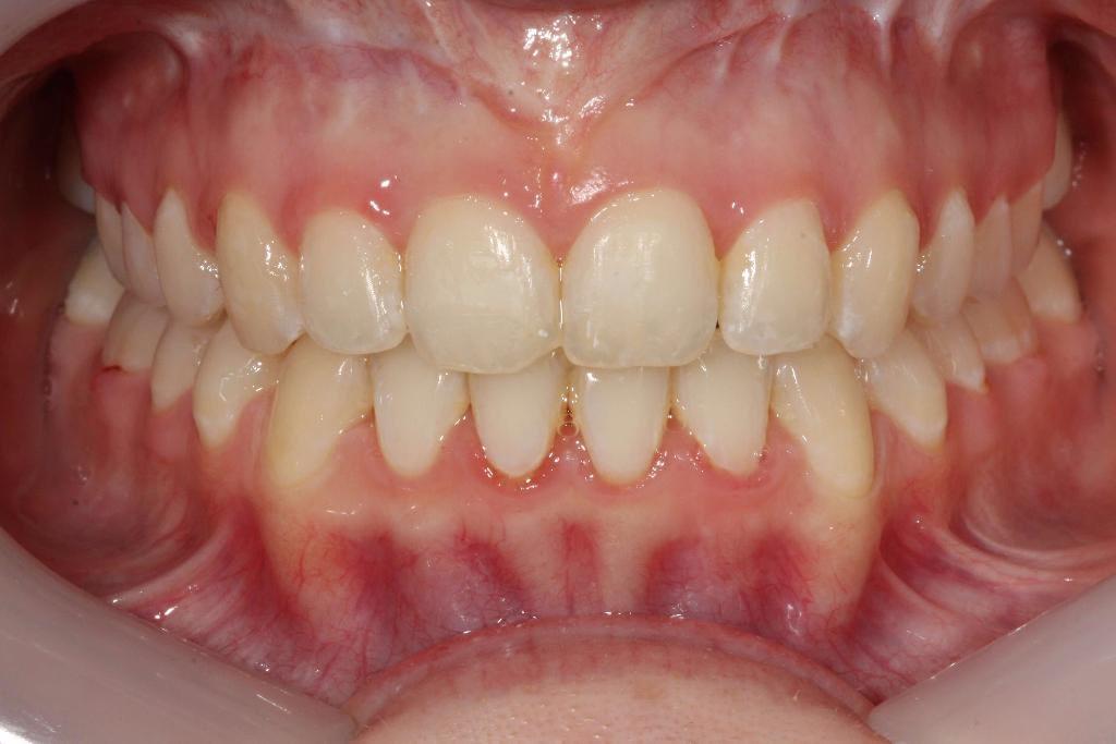Post braces, Open bite closed