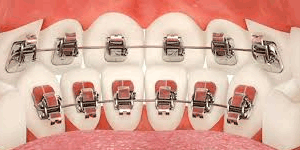 stb-lingual-braces Orthodontic information