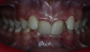 Deep bite associated with severe crowding (Pre treatment), lower teeth cannot be visualised in bite