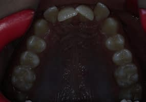 Before Treatment upper arch (severe crowding)