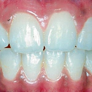 ALIGN DENTISTRY ANTERIOR OPEN BITE, HOW DO PARENTS RECOGNISE IT