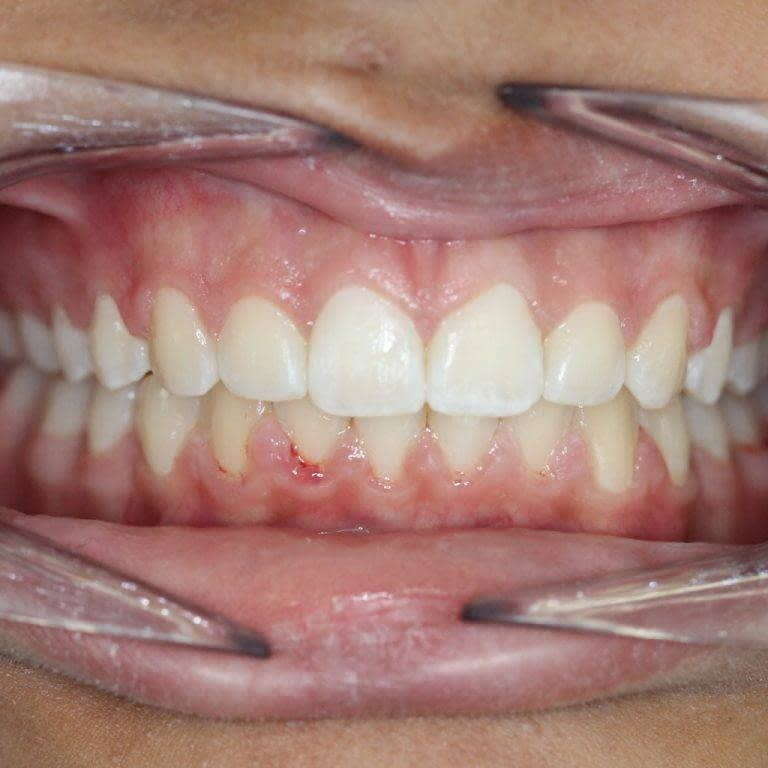 post treatment after expansion and braces