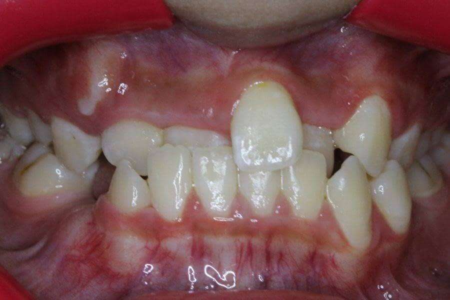 Before Braces: Negative overjet, overbite and severe crowding